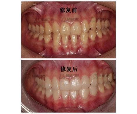 柳州牙周类修复