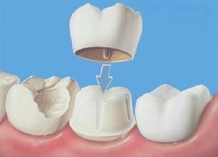 什么是牙齿固定修复?