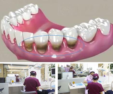 柳州牙周治疗
